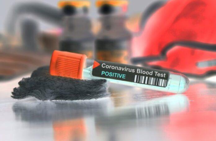 allerta in Italia per il diffondersi del coronavirus